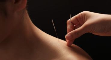 Acupuncture Heretaunga